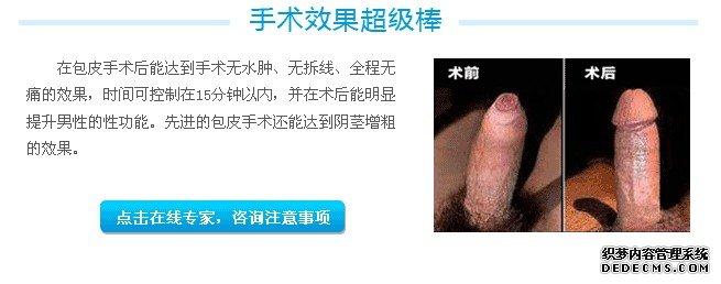 泌尿医院包皮手术优势